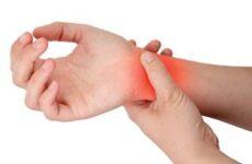 Біль у серці і біль у лівій руці – оніміння і тяжкість
