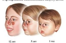 Ознаки гаймориту у дітей, його симптоми і лікування