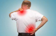 Мазь знеболююча для спини і хребта при болях: яка недорога і зігріває?
