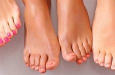Ирунин і Флуконазол при грибку нігтів: інструкція по застосуванню