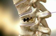 Компресійний перелом грудного відділу хребта – що за травма