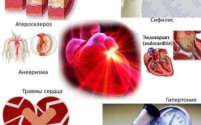 Аортальний порок серця: що це таке, симптоми і лікування