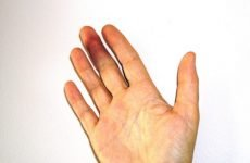 Як визначити перелом пальця на руці за допомогою огляду та інструментальної діагностики