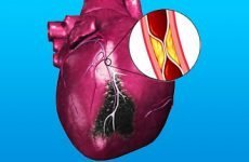Все про крупноочаговом інфаркті міокарда