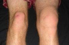Вивих колінного суглоба: симптоми і лікування, перша допомога при травмі і реабілітація
