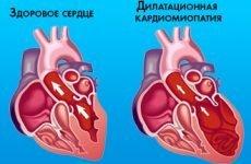 Що таке дисметаболічна кардіоміопатія