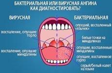 Біль у серці при і після ангіни