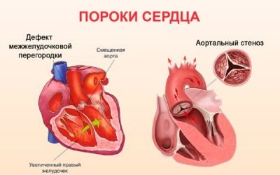 Порок серця: що це таке, класифікація, причини, симптоми і лікування