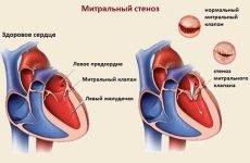 Ревматична хвороба серця: діагностика та лікування