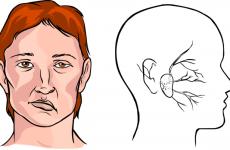 Паралізувало ліву сторону після інсульту: причини і способи відновлення
