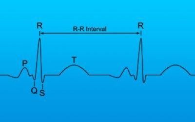 Що означає зниження варіабельності серцевого ритму