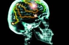 Перелом основи черепа: причини, симптоми, прогноз