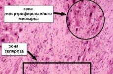 Постінфарктний кардіосклероз: що це таке, причина смерті та лікування