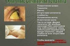 Хвороба Боткіна: який це гепатит, симптоми, лікування і ознаки у дорослих