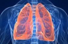 Як лікувати хворобу ХОЗЛ – що це? Дихальна гімнастика при хронічної обструктивної хвороби легень