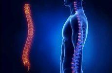 Синдром Педжета — Шреттера: причини розвитку, симптоматика і тактика лікування