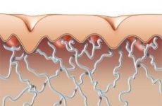 Для чого п'ють колаген всередину в порошках і таблетках і який краще?