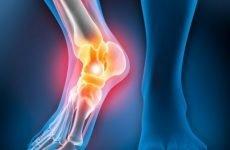 Закритий перелом щиколотки: як відбувається, симптоми і лікування