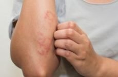 Мікробна екзема на руках і ногах: причини і лікування. Як і чим лікувати інфекційну, бактеріальну екзему