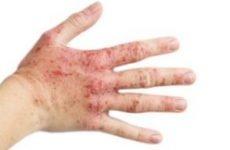 Вірусна екзема: причина і лікування. Як і чим лікувати екзему Капоші (герпетичну)