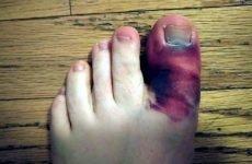 Скільки зростається перелом пальця на нозі: анатомічні та симптоматичні особливості, можливі ускладнення, профілактика, лікування і терміни реабілітації