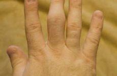 Ознаки перелому пальця на руці, методи лікування й терміни реабілітації