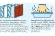 Види переохолодження (стадії гіпотермії): ознаки легкого, глибокого і сильного охолодження організму