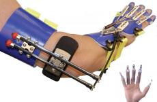 Чим можна замінити гіпс при переломі: види та характеристика альтернативної іммобілізації