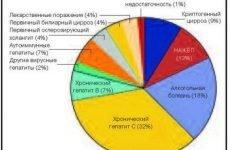 Хвороби печінки: симптоми і ознаки захворювань, назви, лікування дисфункцій