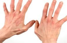 Мазь для лікування нейродерміту на ногах, обличчі і руках: список для дорослих, які негормональні кращі?