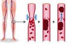 Формування неокклюзивного тромбозу вен нижніх кінцівок: причини, симптоми і тактика лікування