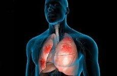 Печіння в області серця – що це означає і які причини