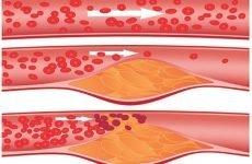 Ущільнення аорти: причини, симптоми і лікувальна тактика