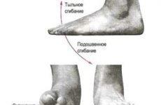 Реабілітація після перелому хребта: ЛФК, масаж і терміни відновлення