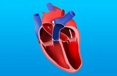 Ранні та пізні ускладнення після інфаркту міокарда: симптоми та корекція