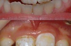 Чому на зубах у дитини з'являються білі плями і як їх прибрати