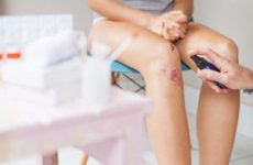 Лікування інфікованої рани: ознаки інфекції, чим можна обробити травму в домашніх умовах