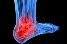 Як відбувається перелом гомілкостопа: клініка, діагностика, лікування
