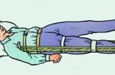 Перелом стегна: симптоми та невідкладна допомога при відкритому переломі стегна