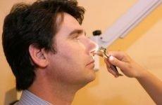 Перелом кісток носа: симптоми, методи лікування, поради лікарів