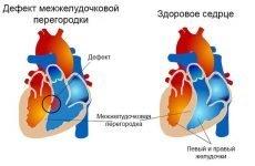 Діагностика та лікування дефекту міжшлуночкової перегородки серця