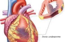 """Перенесений інфаркт """"на ногах"""": наслідки і симптоми у чоловіків і жінок"""