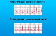 Аритмія на ЕКГ – фото з розшифровкою