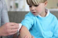 Перша допомога при різаної рани: характеристика та лікування поранення, чим обробити пошкодження, препарати та регенеруючі мазі