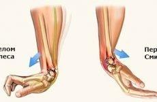 Перелом променевої кістки руки: лікування, термін зрощення і методи реабілітації