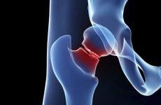 Як виявляється перша допомога при переломі стегна