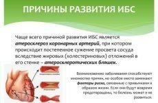Симптоми та методи лікування гострого інфаркту міокарда
