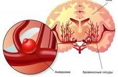 Розрив аневризми головного мозку: наслідки та лікування