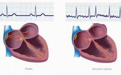 Як зняти напад аритмії серця в домашніх умовах