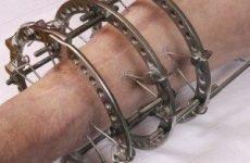 Апарат Ілізарова на руці: установка, зняття і відновлення руки, строки застосування
